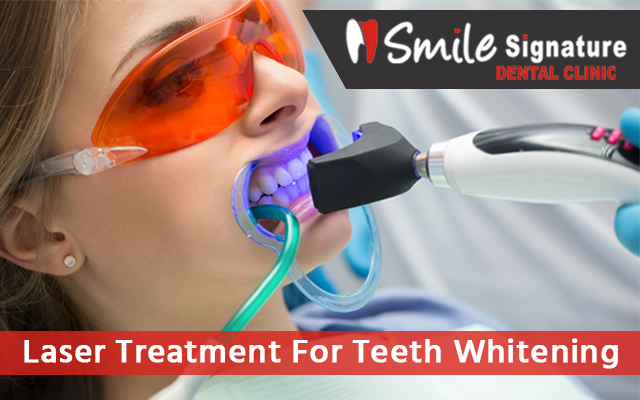Laser Treatment For Teeth Whitening