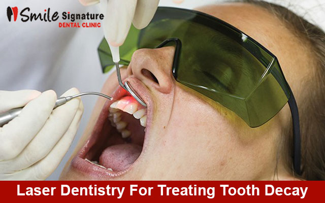 Laser Dentistry For Treating Tooth Decay