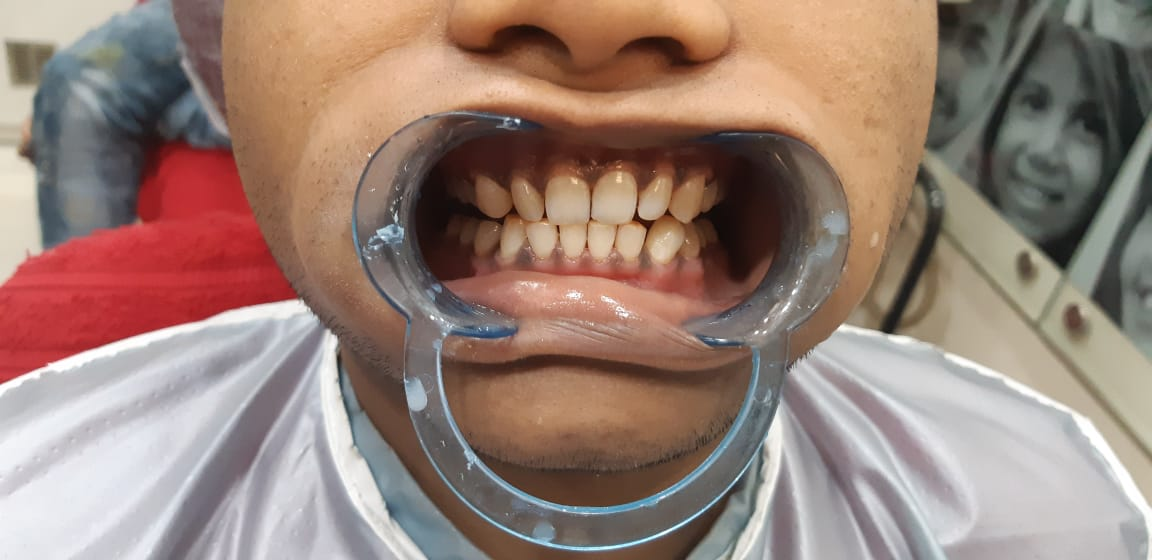 Dental Clinic in Kolkata
