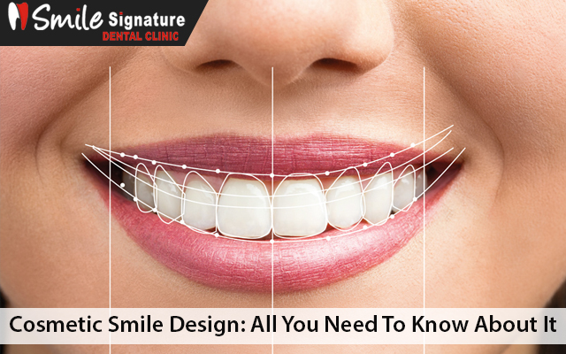 Cosmetic Smile Design: All You Need To Know About It