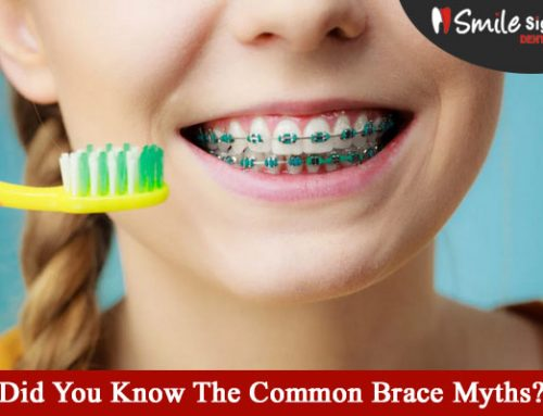 Did You Know The Common Brace Myths?