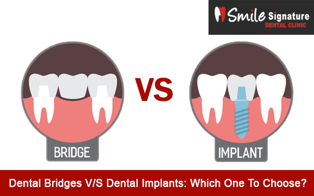 Dental Bridges V/S Dental Implants: Which One To Choose?