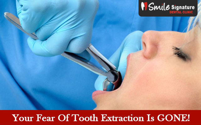 Your Fear Of Tooth Extraction Is GONE!
